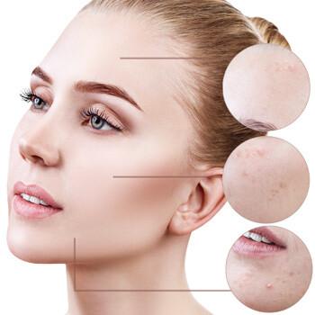 Hautprobleme überschminken - Make-Up-Beratung Kassel