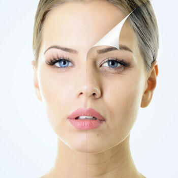 Verbessertes Hautbild nach JetPeel Basic & Jet Peel Anti Age