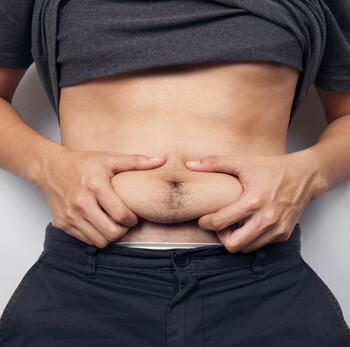 Fett am Bauch entfernen mit Coolsculpting
